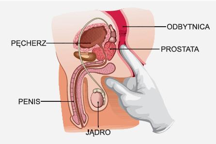 jak długo trwa nietrzymanie moczu po operacji prostaty