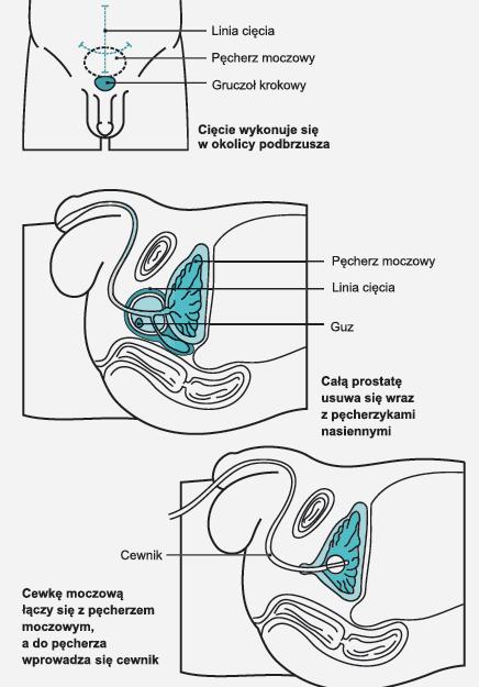 przywróć erekcję po prostatektomii