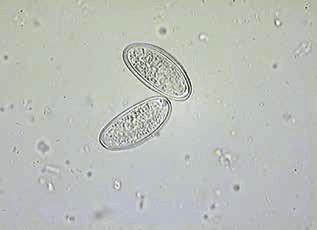 Enterobius vermicularis leczenie. Oxiurii - paraziti intestinali